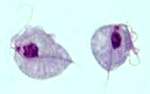 Two trophozoites of Trichomonas vaginalis, the causative agent of trichomoniasis. Image from the CDC's Parasite Image Library.