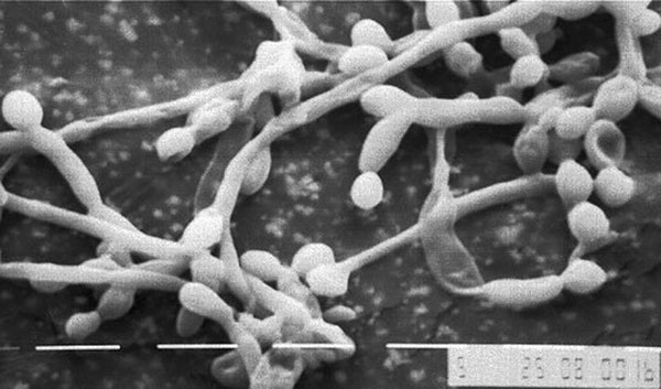 Candida albicans case study